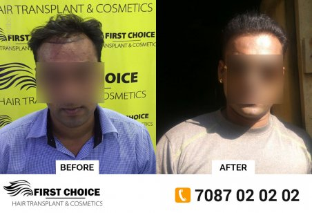 FCHTC Hair Clinic Ludhiana: Best Hair Transplant clinic in Punjab