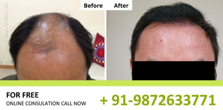 NHT Hair Transplant Clinic in Mumbai, 9872633771