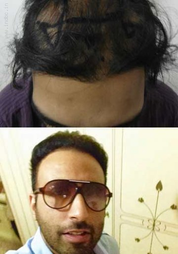 Best FUE Hair Transplant Centre in India