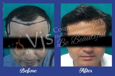 Giga Session Hair Transplant in Visakhapatnam, India