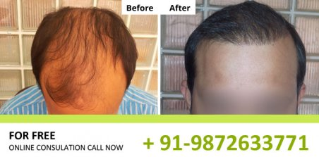Natural Hair Transplant Clinics in Chandigarh