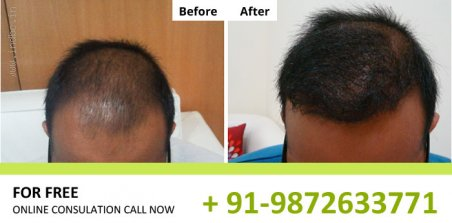 Hair Transplant in Pune at effective cost, 9872633771